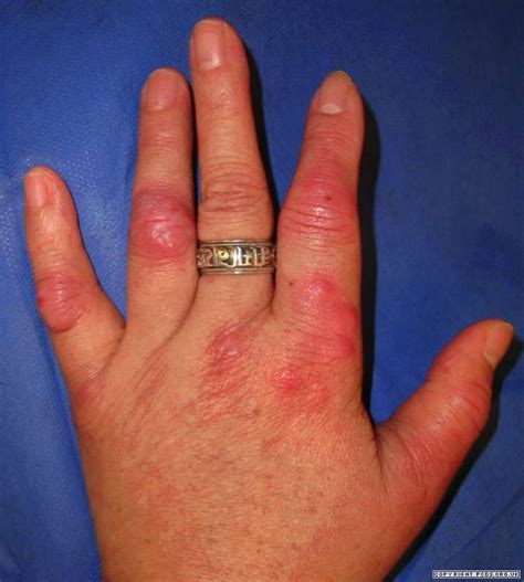 Mycobacterial infections | Primary Care Dermatology