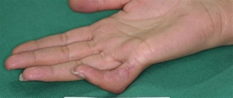 A fracture of the proximal phalanx of the little finger
