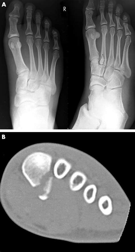 Avulsion fracture of peroneus longus at the first
