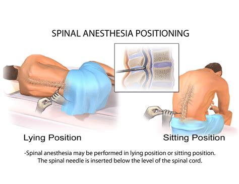 Narkosguiden in english | Spinal Anaesthesia